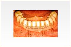 歯が全くない場合