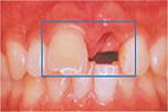 前歯の差し歯を抜歯するインプラントのイメージ