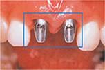 前歯の差し歯を抜歯するインプラント