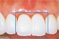 前歯を連続してインプラントにするのイメージ